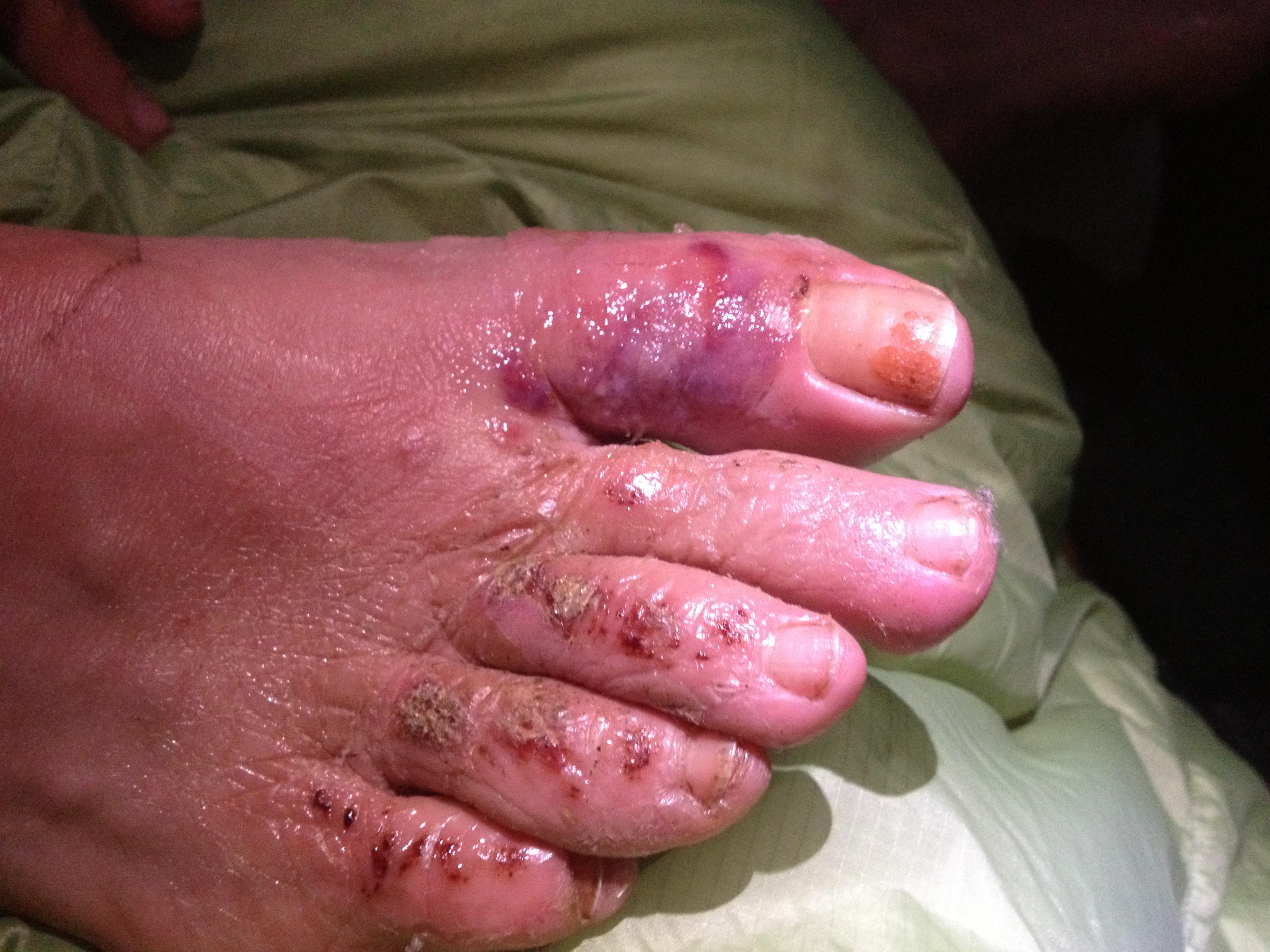 Handling Wet Feet