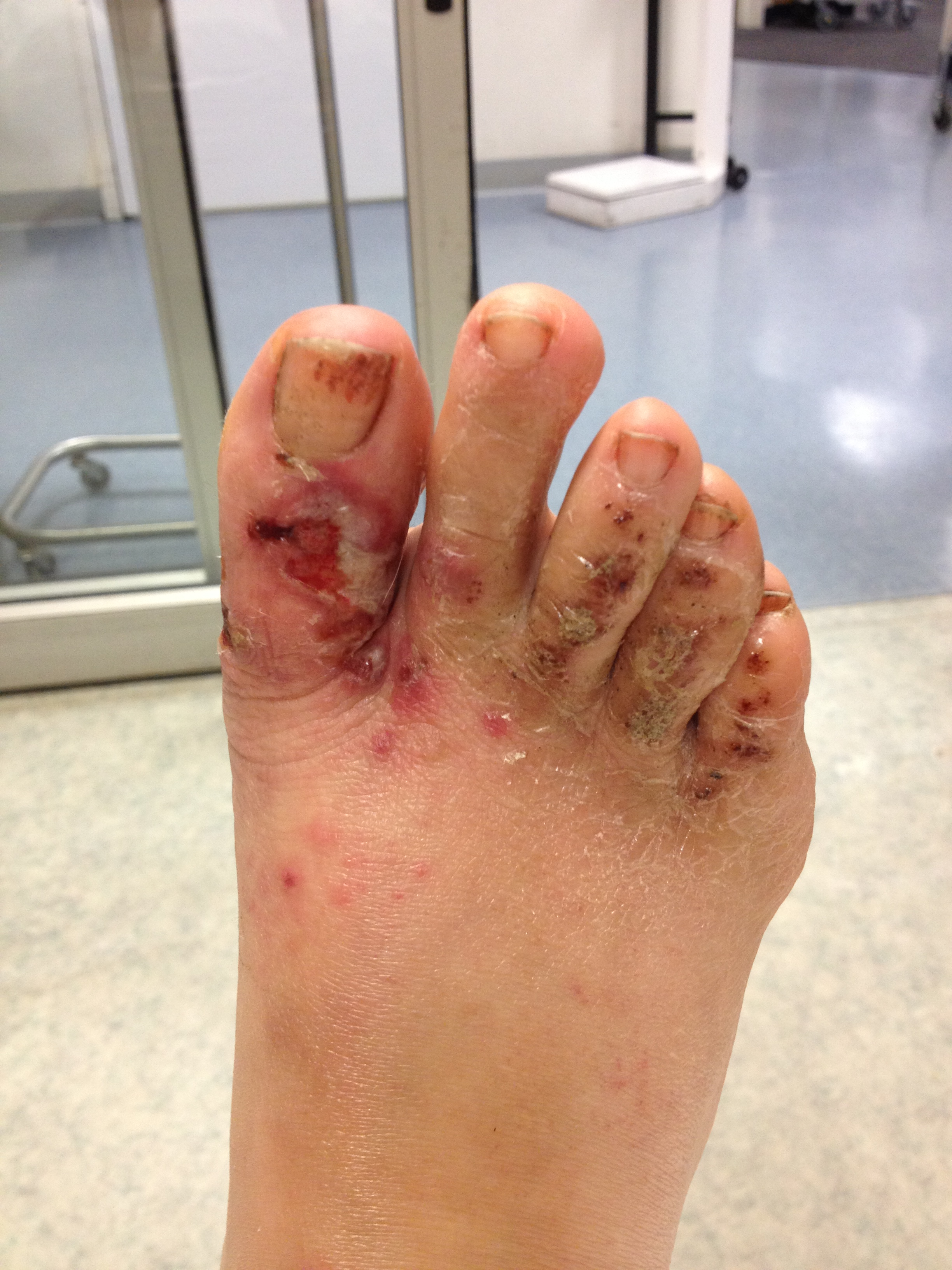 Backpacking Foot Pain